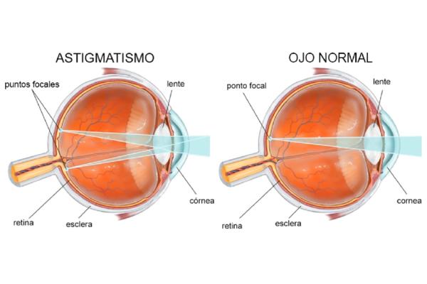 astigmati-1400x946