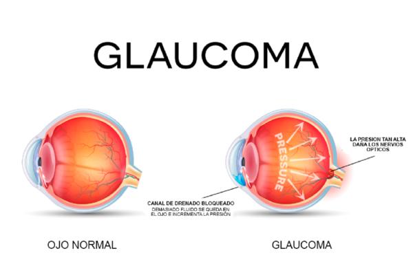 glaucom-1400x946