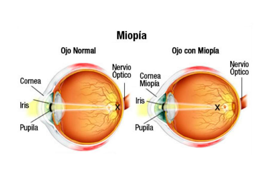 miopi-1400x946